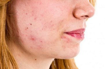 Acne Bacteria: Does It Really Cause Acne?