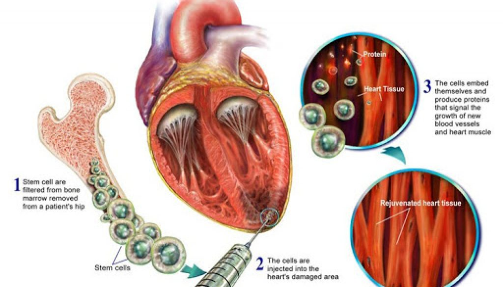 All You Wanted To Know About Stem Cell Therapy For Heart Disease