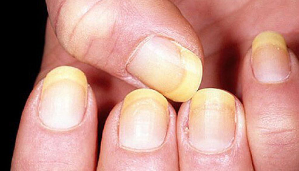Disease Detection Through Nail Color
