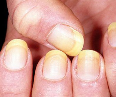 Disease Detection Through Nail Color