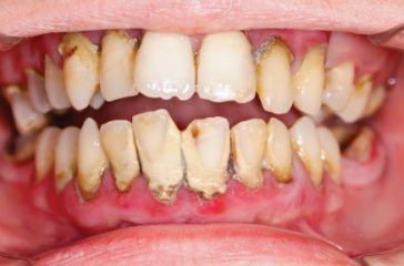 Know What Causes Gum Disease Through Our Gum Disease Information Guide
