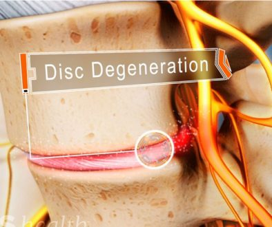 Degenerative Disc Disease Surgery In India At Affordable Cost