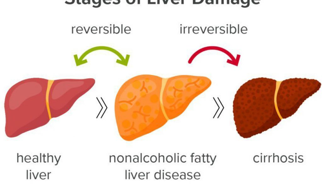 Fatty Liver Disease Treatment – The Fatty Liver Solution