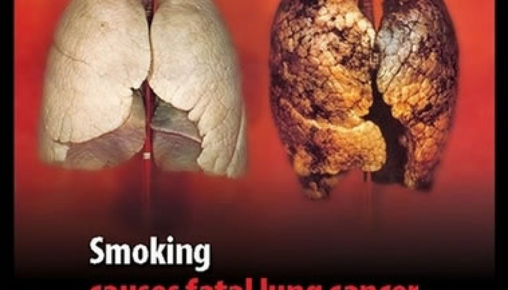 What Diseases Can You Get From Smoking?