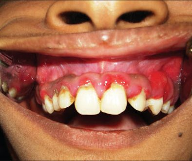 Adolescents and Periodontal Disease