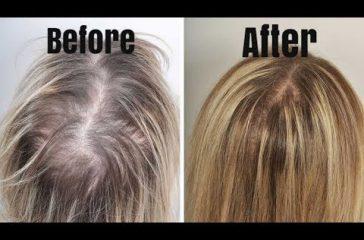 Treating Thyroid Hair Loss Effectively