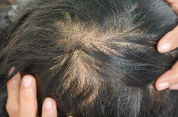 Women's Hair Loss- Understanding It