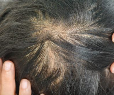 Women's Hair Loss- Understanding It