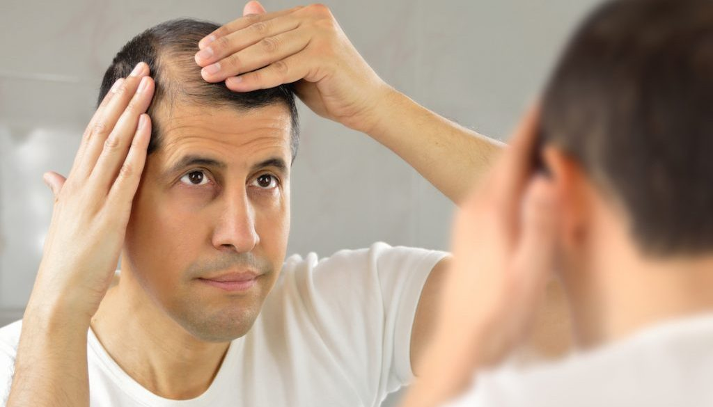 2 Types Of Non-Prescription Treatment For Hair Loss (Procerin & Provillus)