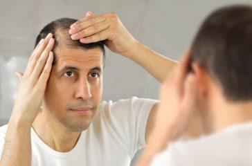 2 Types Of Non-Prescription Treatment For Hair Loss (Procerin & Provillus)