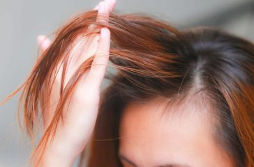 The Reasons And Treatment For Hair Loss In Women